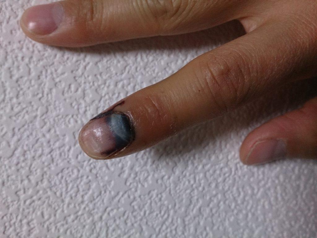 爪剥がれ画像
