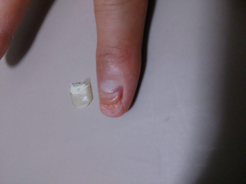 爪が剥がれてから2ヶ月の画像